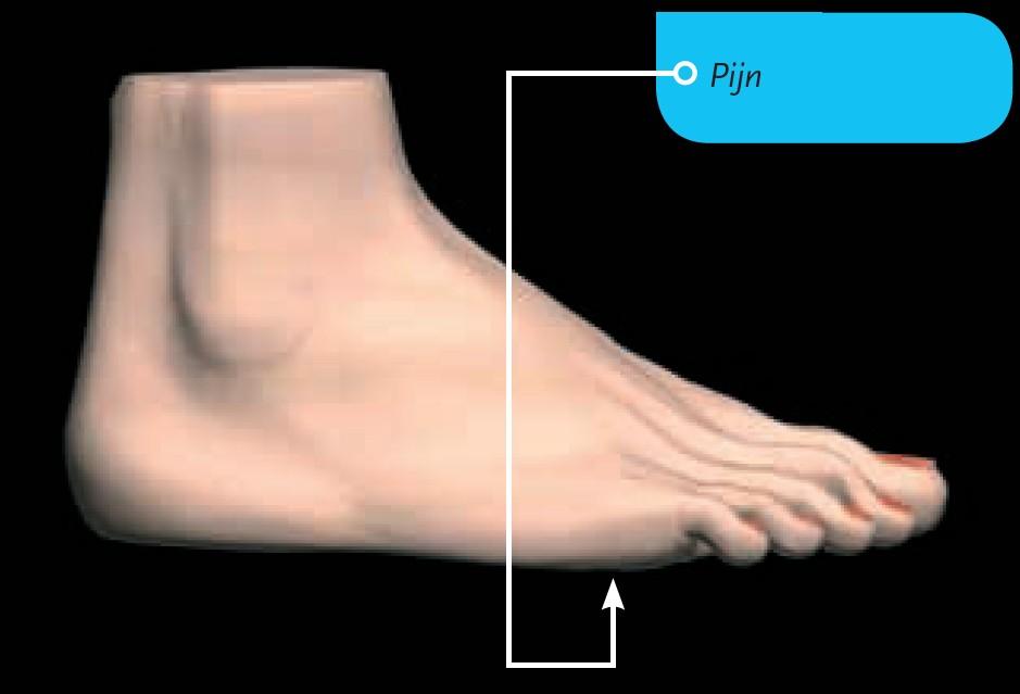 Een Morton-neuroom in de voet